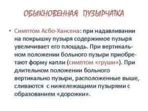 Асбо ганзена